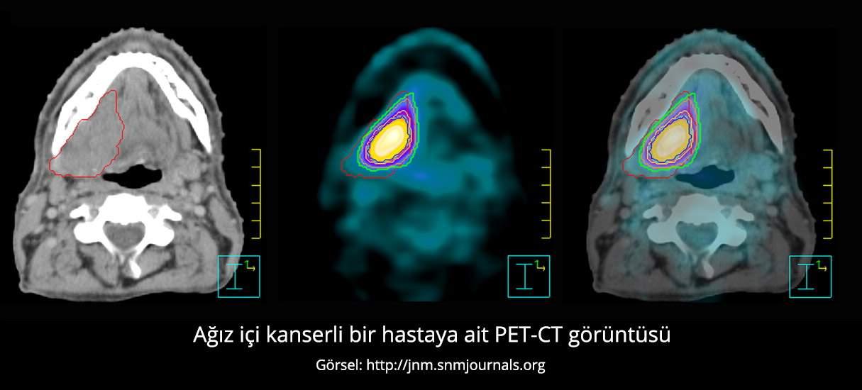 Ağız İçi Kanseri Pet Ct Görüntüsü - Prof. Dr. Çetin Vural