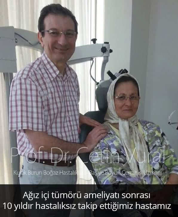 Ağız İçi Tümörü Hastası - Prof. Dr. Çetin  Vural