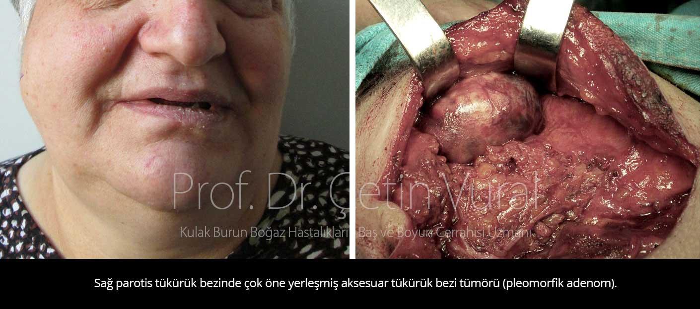 Parotis tümörü ameliyatı - Prof. Dr. Çetin Vural