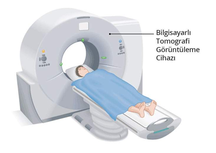 Bilgisayarlı tomografi - Prof. Dr. Çetin Vural