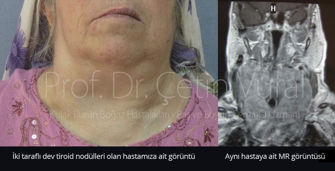 Dev Tiroid Nodülü - Prof. Dr. Çetin Vural