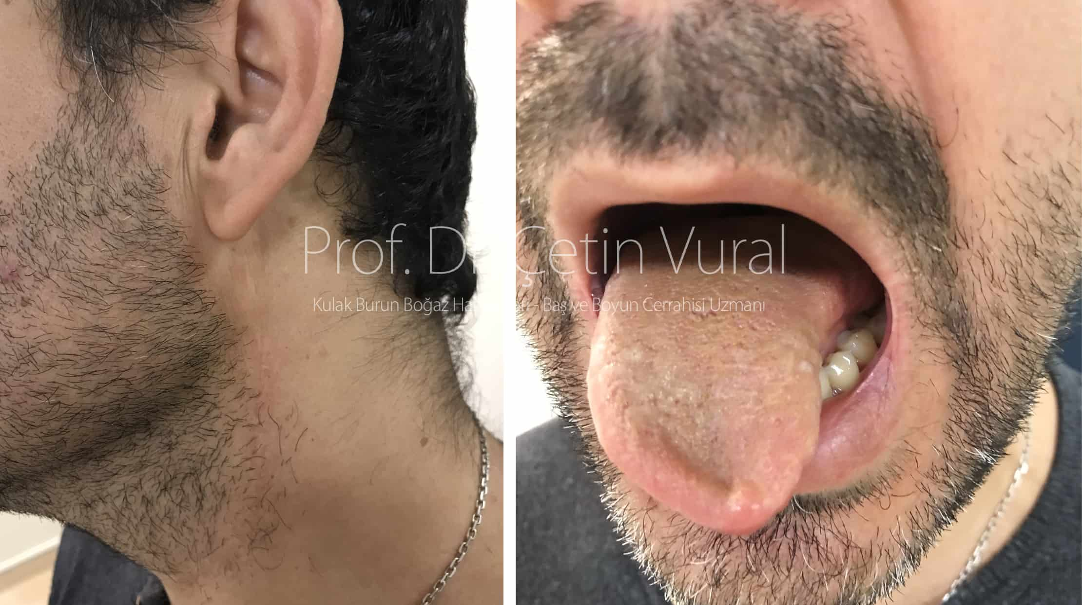 Dil Kanseri Ameliyatı Sonrası - Prof. Dr. Çetin Vural