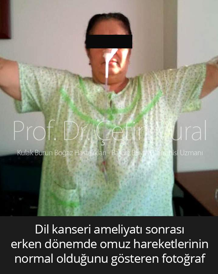 Dil Kanseri Sonrası Omuz Hareketi - Prof. Dr. Çetin Vural