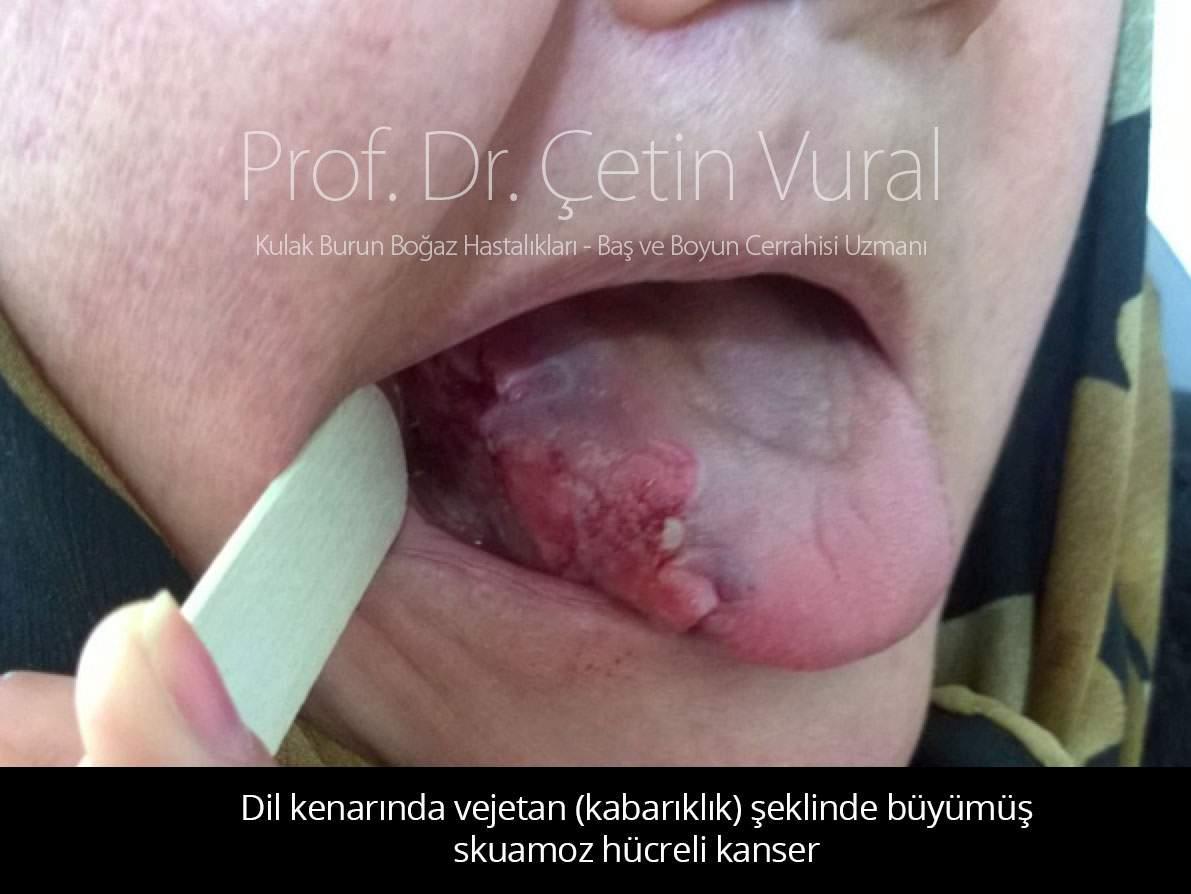 Dil Kanseri - Vejetan Skuamoz Hücreli Kanser - Prof. Dr. Çetin Vural
