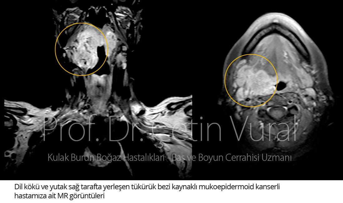 Dil Kökü Mukoepidermoid Kanser - Prof. Dr. Çetin Vural