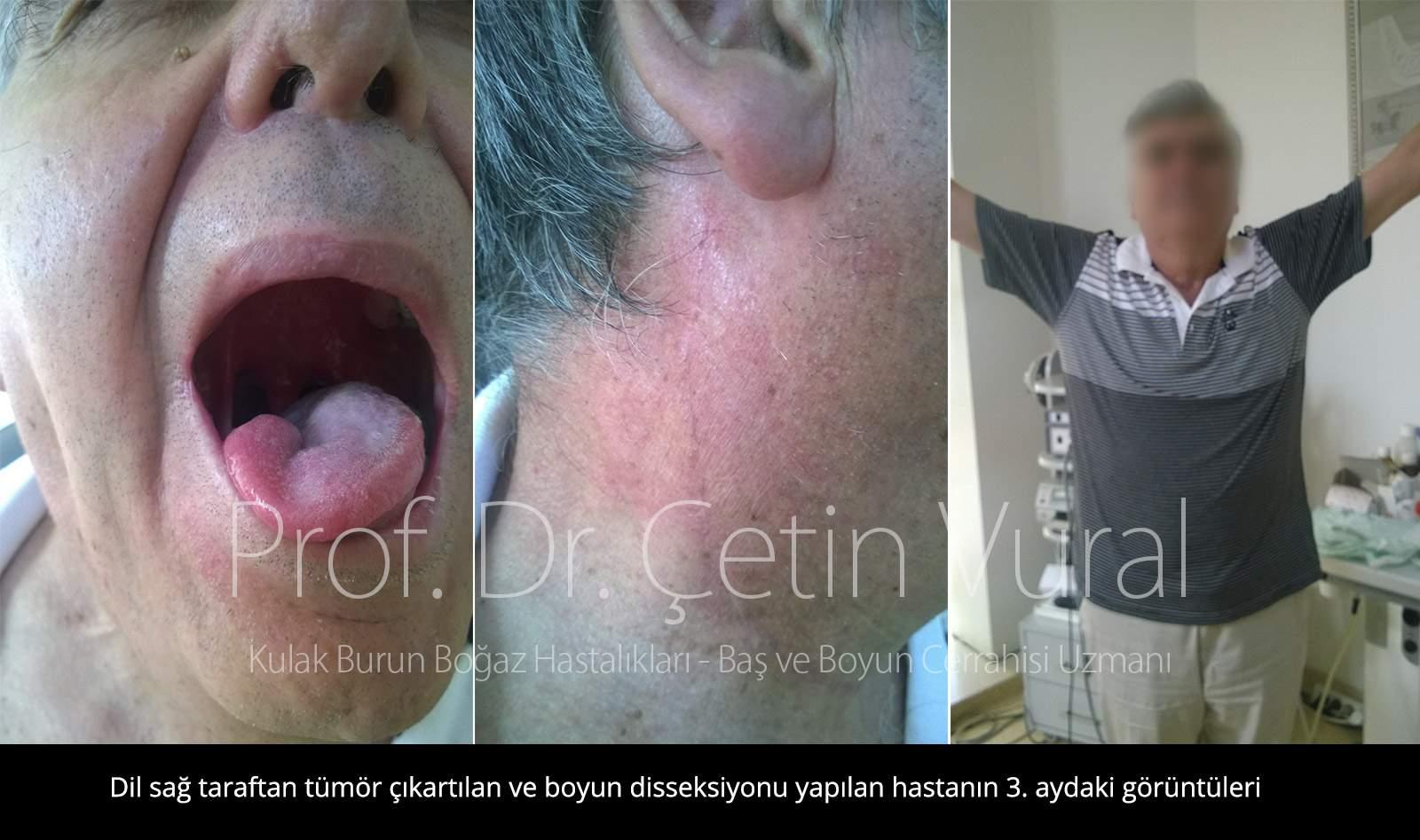 Dil Sağ Taraf Post Op Kontrol - Prof. Dr. Çetin Vural