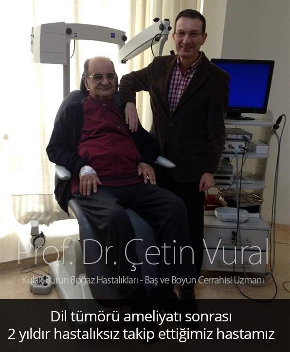 Dil Tümörü Hastası - Prof. Dr. Çetin Vural
