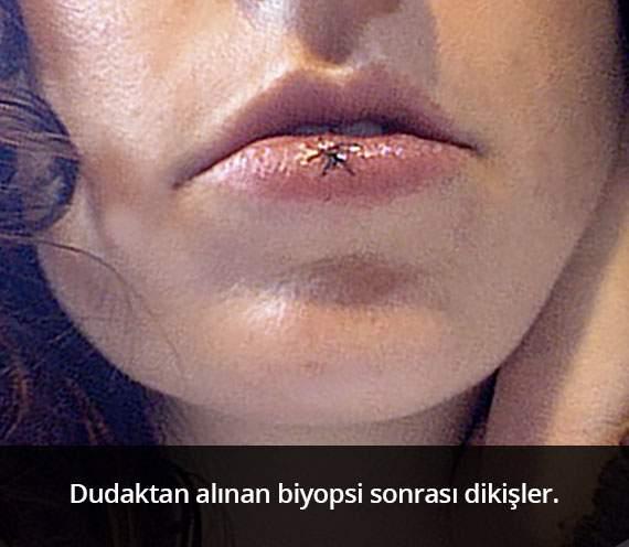 Dudak Biyopsisi Sonrası Dikişler - Prof. Dr. Çetin Vural