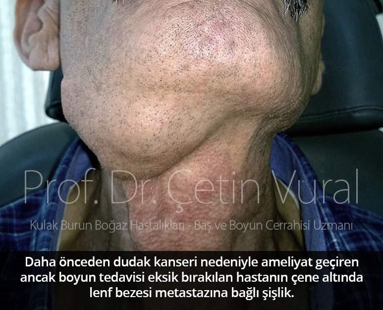 Dudak Kanseri Boyun Metastazı - Prof. Dr. Çetin Vural