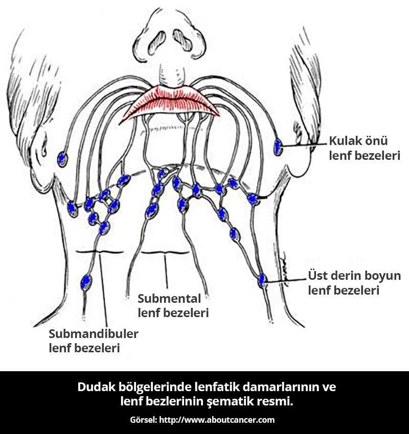 Dudak Lenf Damarları - Prof.Dr. Çetin Vural