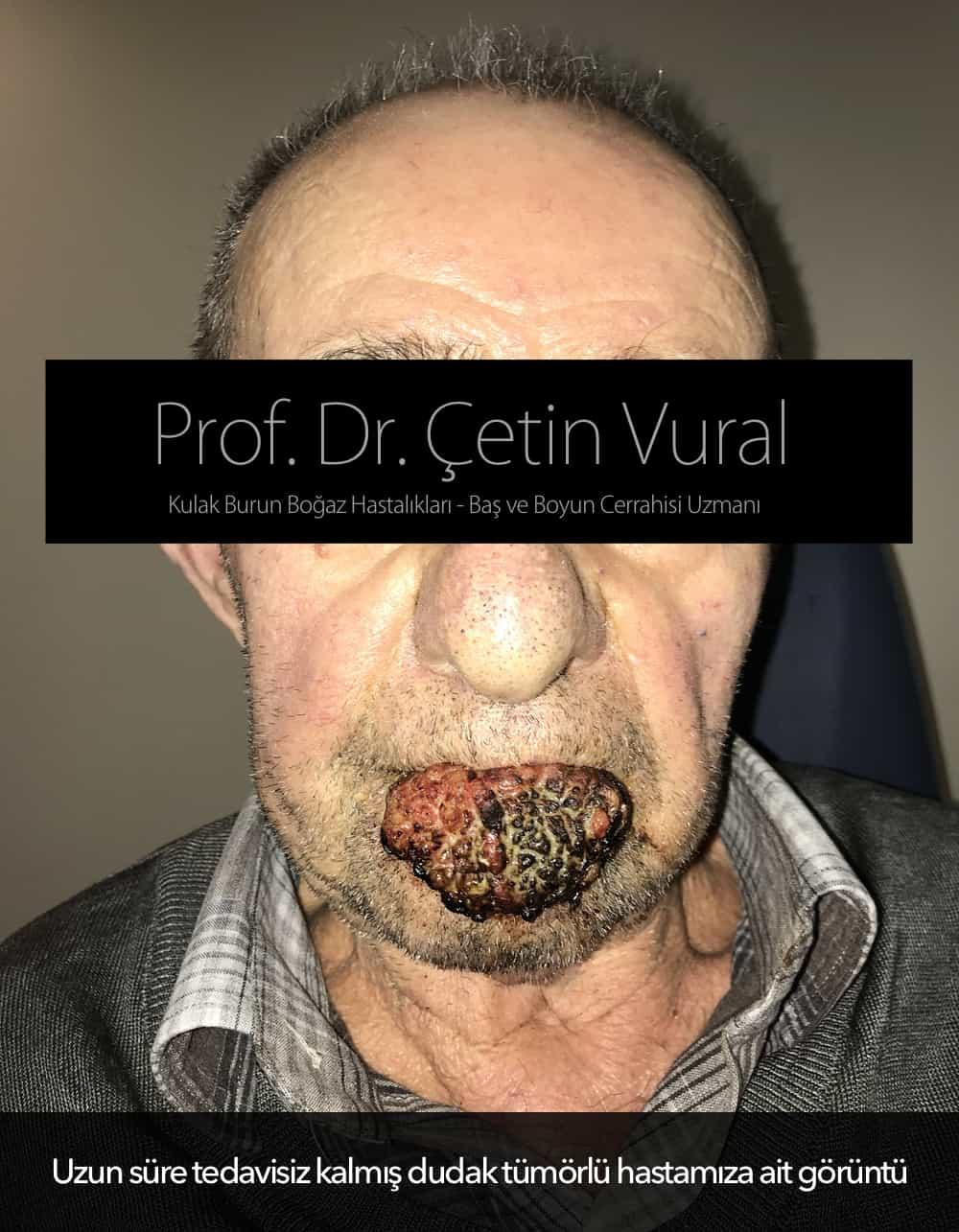 Dudak Tümörlü Hasta - Prof.Dr. Çetin Vural