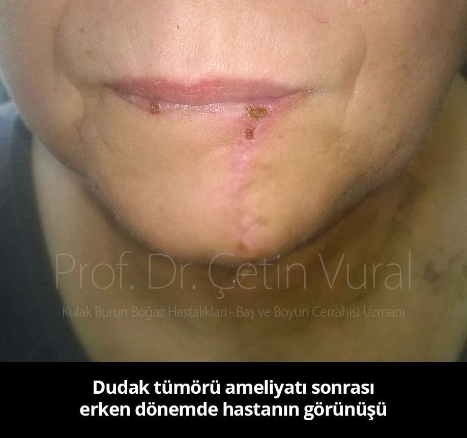 Dudak Tümörü Ameliyat Sonrası- Prof. Dr. Çetin Vural