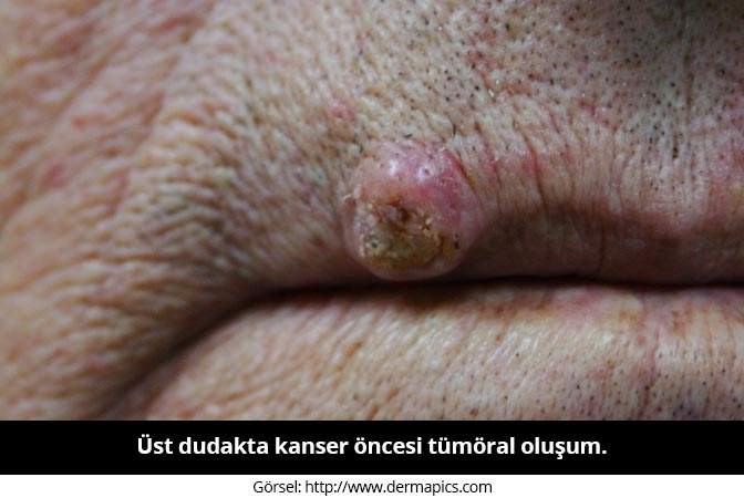Dudak tümörü nedir? - Prof. Dr. Çetin Vural