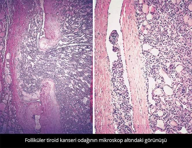 Folliküler Tiroid Kanseri - Prof. Dr. Çetin Vural
