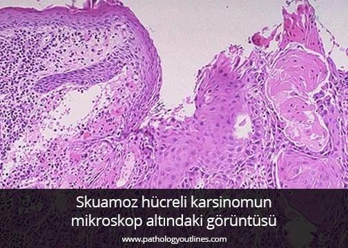 Gırtlak Kanseri - Prof. Dr. Çetin Vural