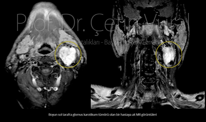 Glomus MR - Prof. Dr. Çetin Vural