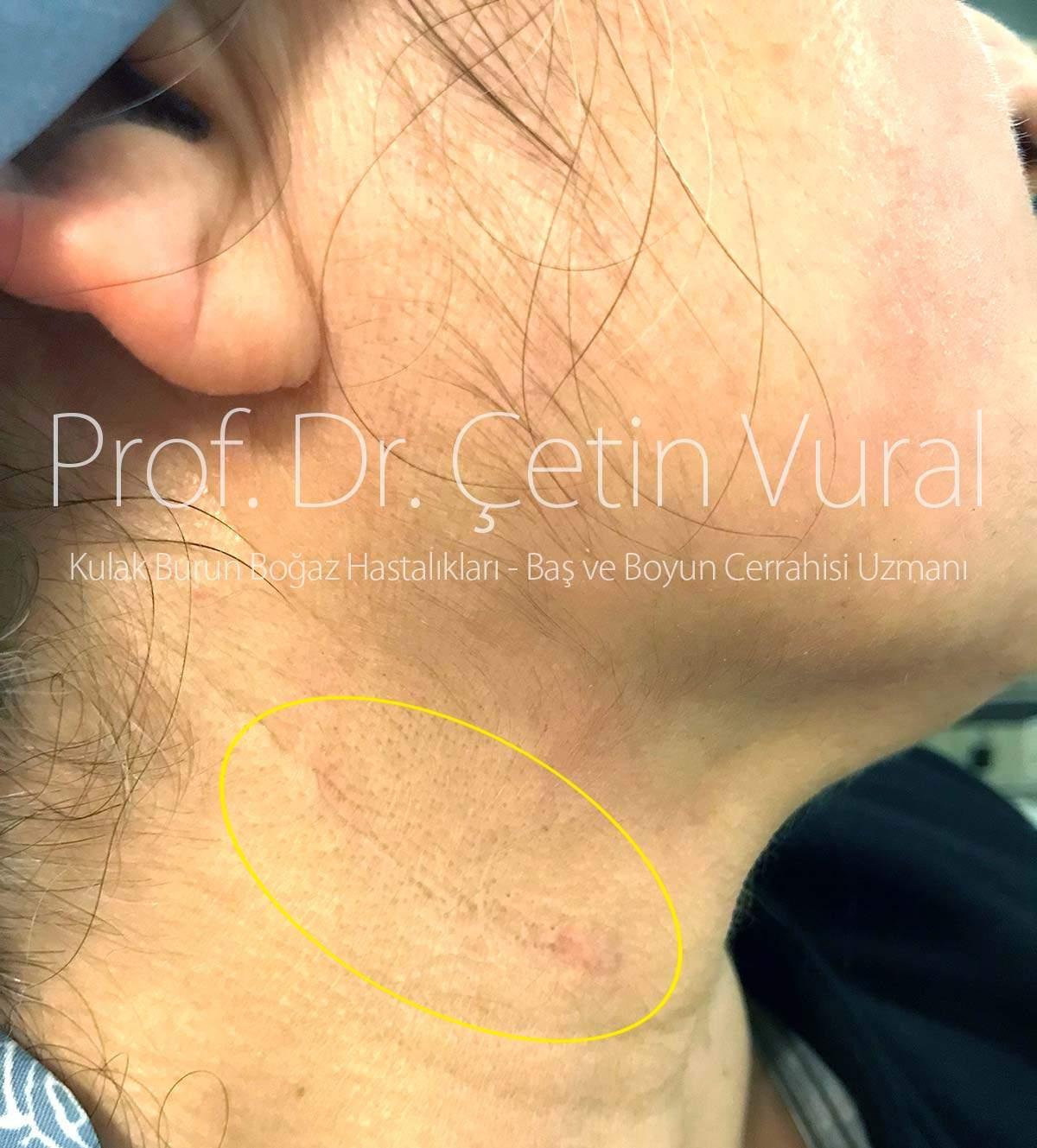 Glomus Ameliyatı Sonrası Birinci Yıl - Prof. Dr. Çetin Vural