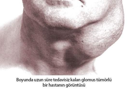 Glomus Tümörü Hasta - Prof. Dr. Çetin Vural
