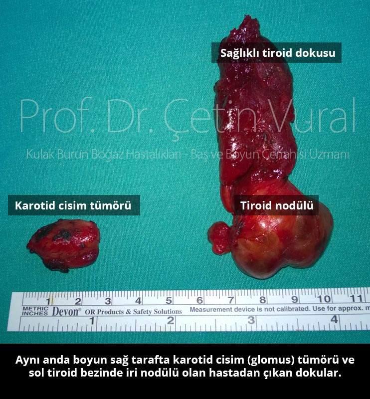 Glomus ve Tiroid Nodulu - Prof. Dr. Çetin Vural