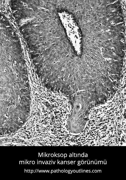 Mikro invaziv kanser veya mikro invaziv karsinom - Prof. Dr. Çetin Vural