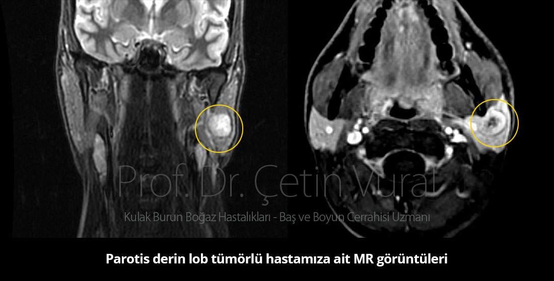 Parotis bezi derin lob tümörü ameliyatı - Prof. Dr. Çetin Vural