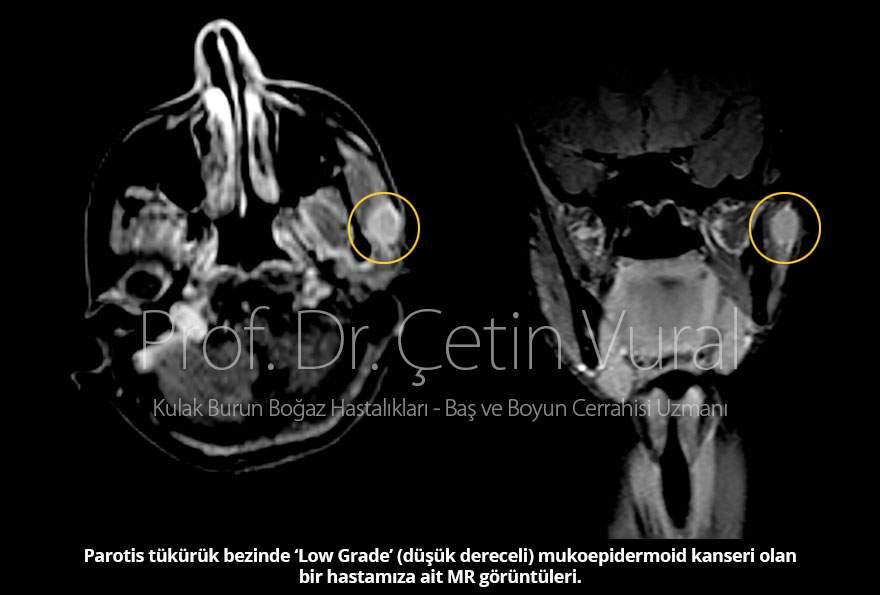 Mukoepidermoid kanser nasıl tedavi edilir? - Prof. Dr. Çetin Vural
