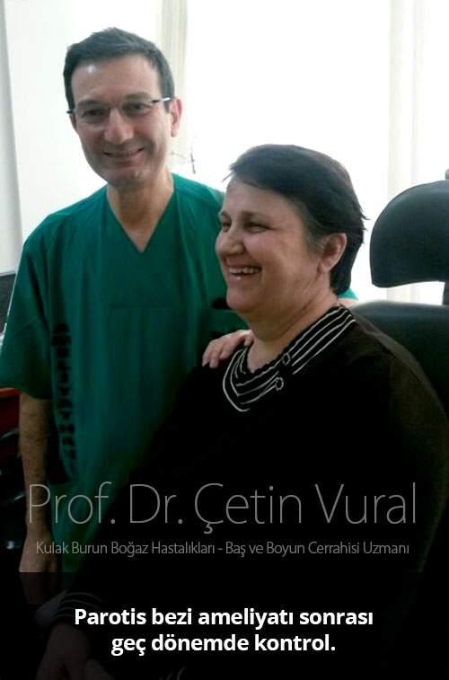 Tükürük Bezi Ameliyatı Sonrası Süreç - Prof. Dr. Çetin Vural