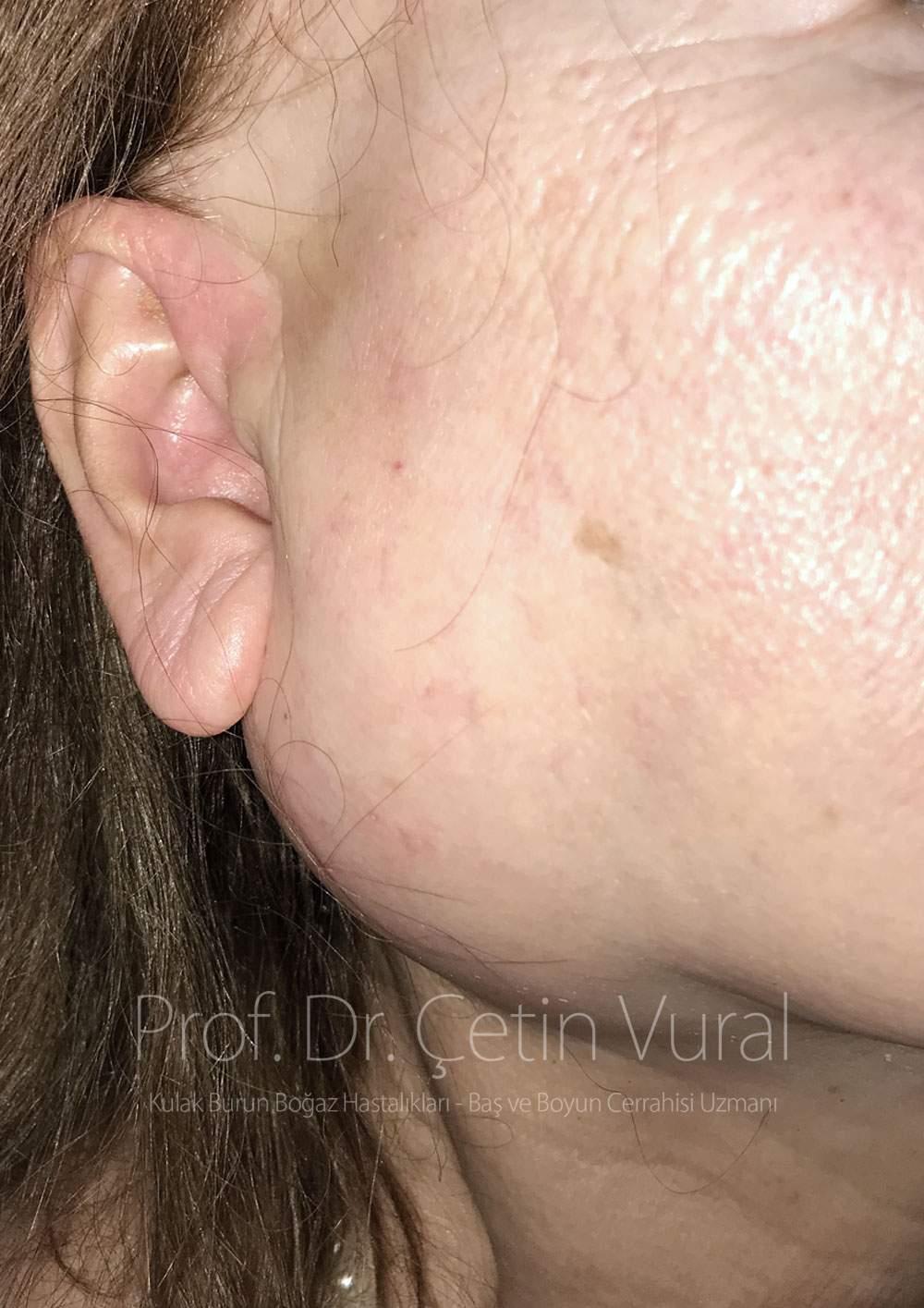 Parotis tümörü yüz felci yapar mı? - Prof. Dr. Çetin Vıural
