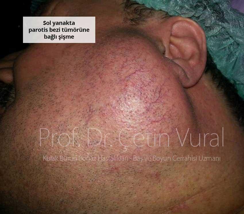 Parotis tükürük bezi tümörü - Prof. Dr. Çetin Vural