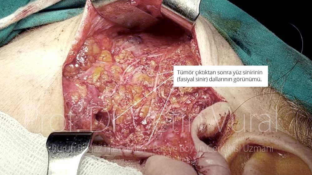 Pleomorfik Adenom Ameliaytı Sonrası Fasiyal Sinir - Prof. Dr. Çetin Vural