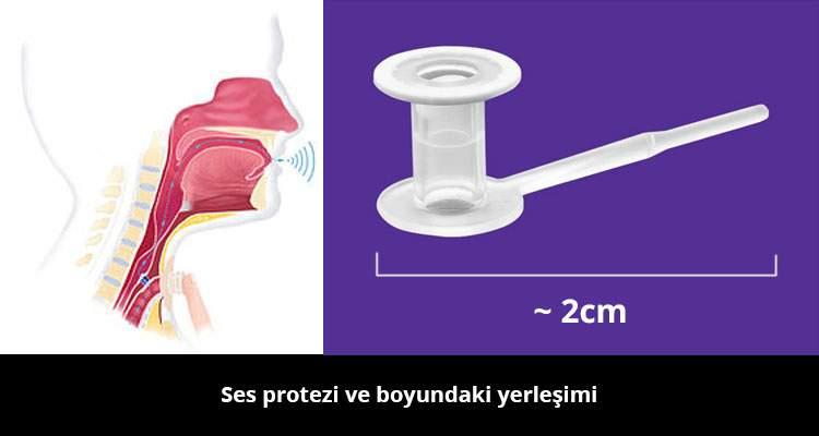 Ses Protezi be Boyundaki Yerleşimi - Prof. Dr. Çetin Vural