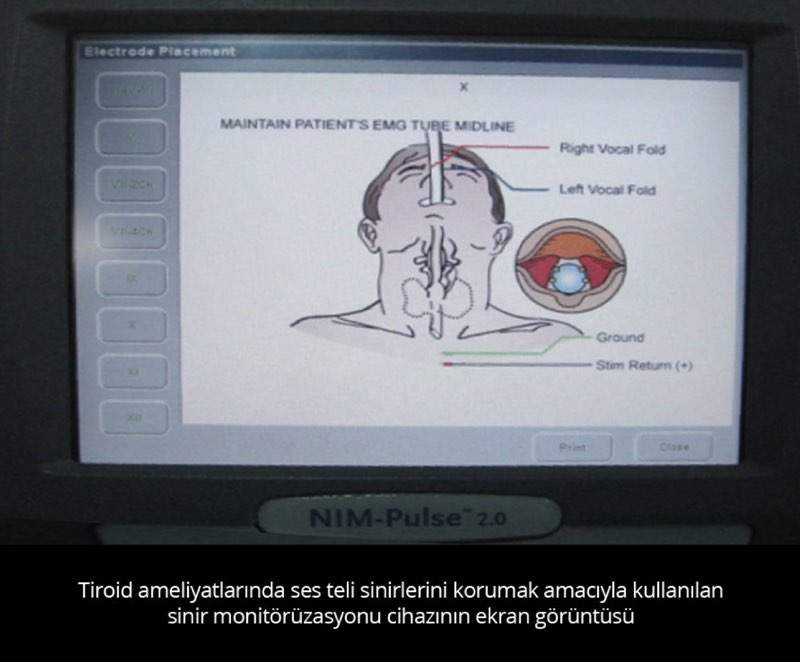 Sinir Mmonitörü - Prof. Dr. Çetin Vural
