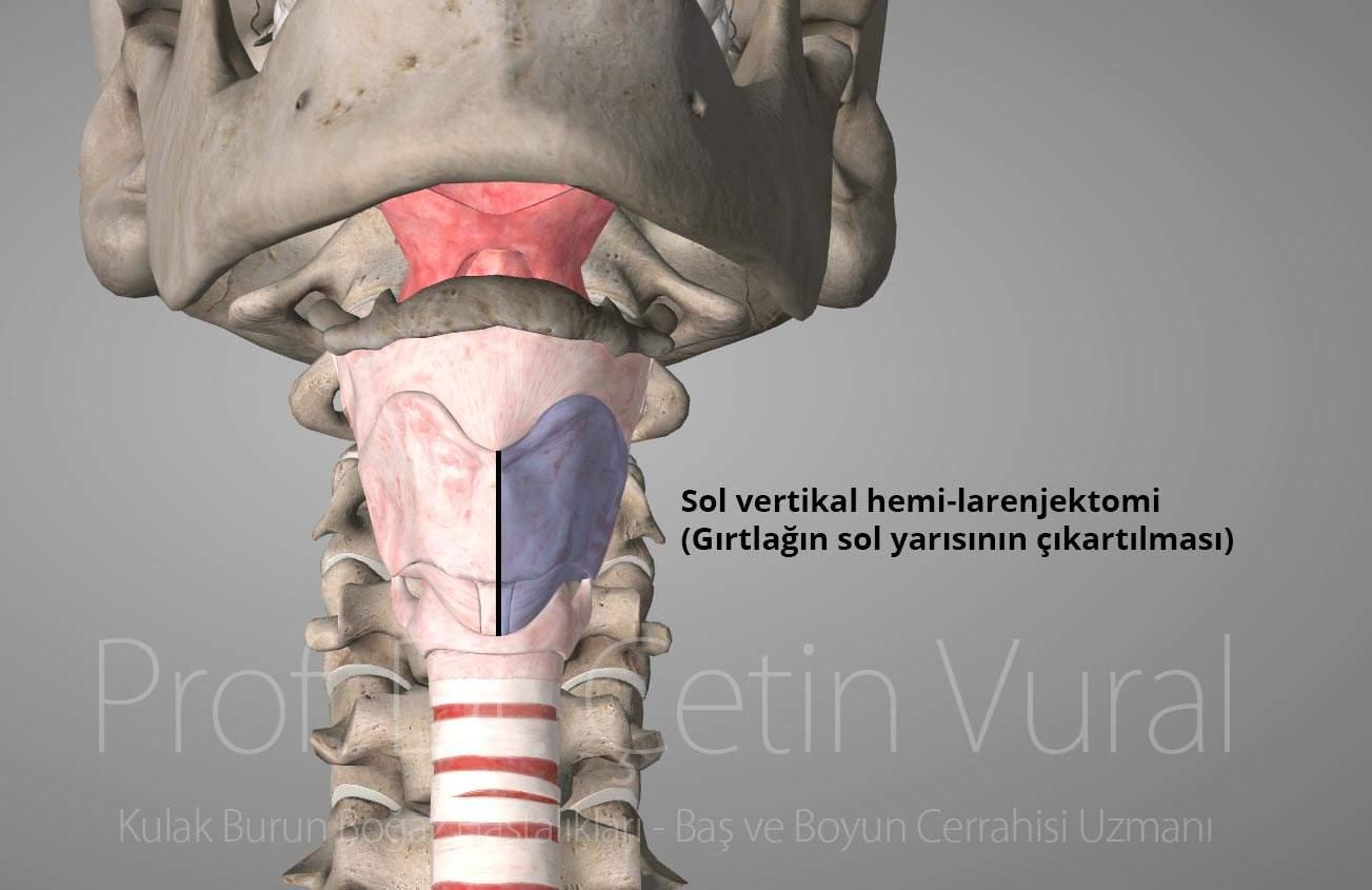 Sol Hemi Larenjektomi - Prof. Dr. Çetin Vural