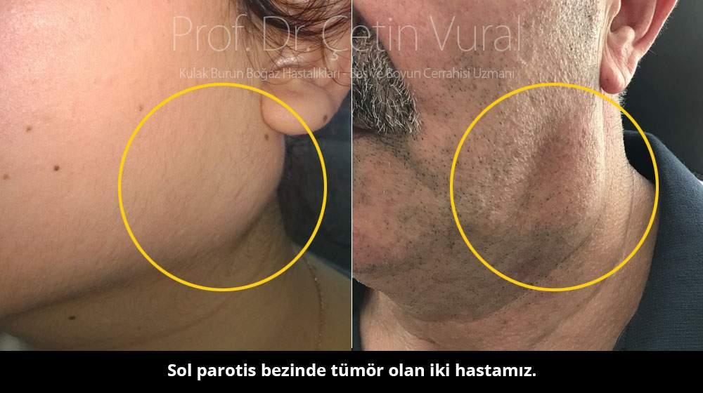Tükürük bezi tümörü - Prof. Dr. Çetin Vural
