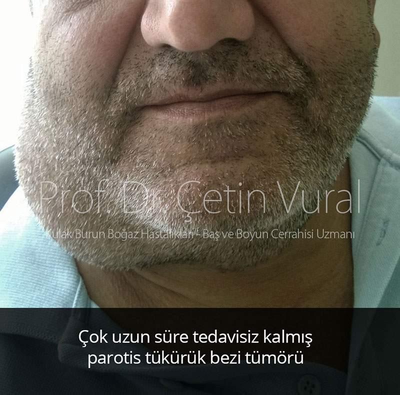 Tedavisiz Kalmış Parotis Tümörü - Prof. Dr. Çetin Vural