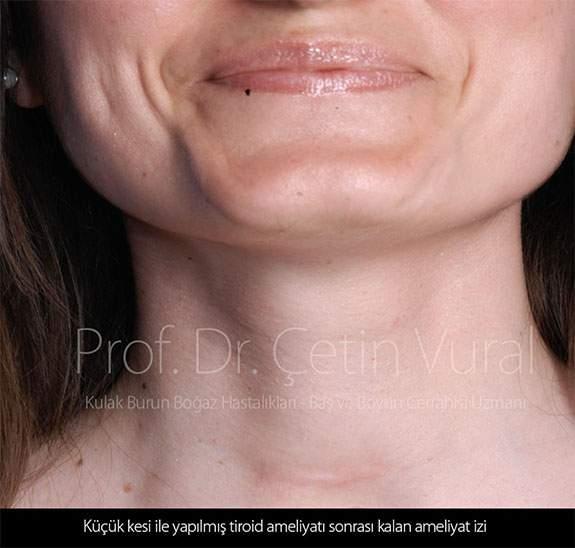 Tiroid Ameliyatı İzi - Prof. Dr. Çetin Vural