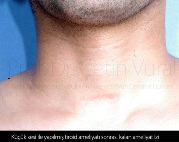 Tiroid Ameliyatı İzi  2 - Prof. Dr. Çetin Vural