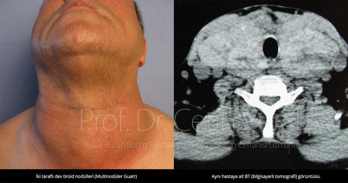 Tiroid Nodüllü Hastamız ve BT Görüntüsü - Prof. Dr. Çetin Vural