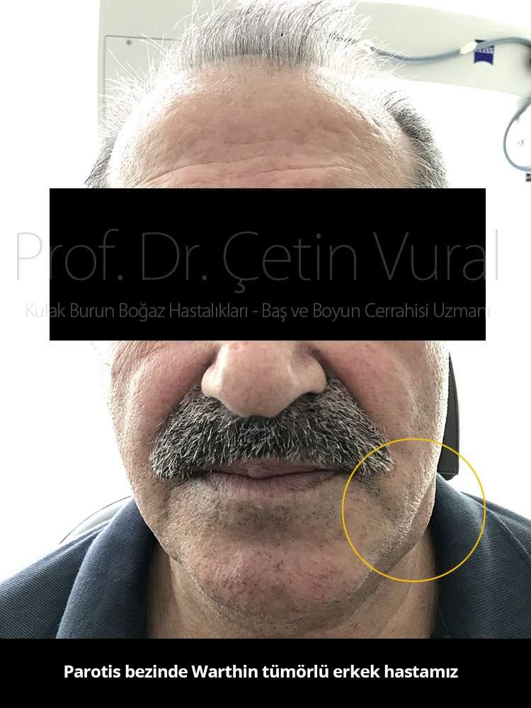 Warthin Tümörü - Prof. Dr. Çetin Vural