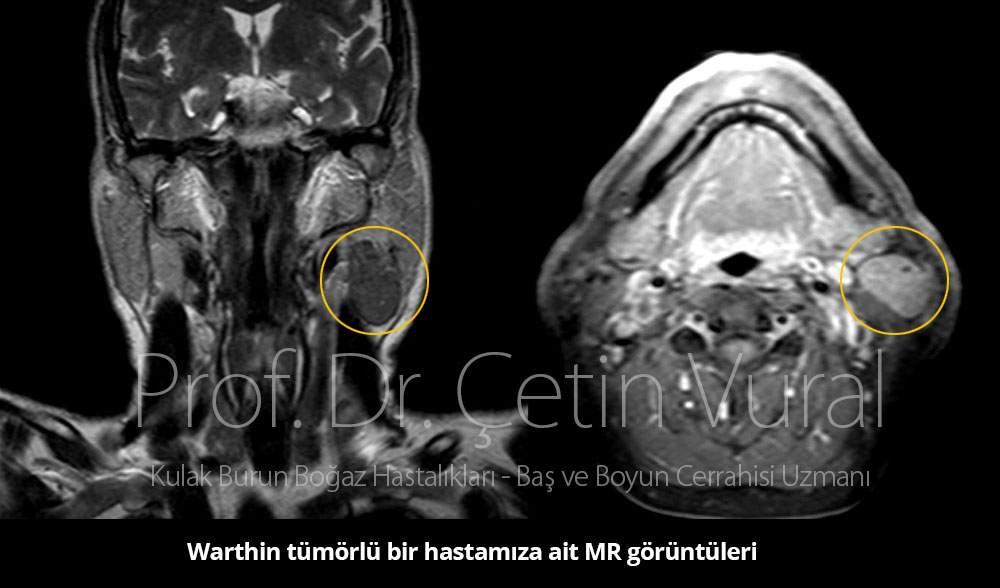 Warthin tümörü nasıl tedavi edilir? - Prof. Dr. Çetin Vural