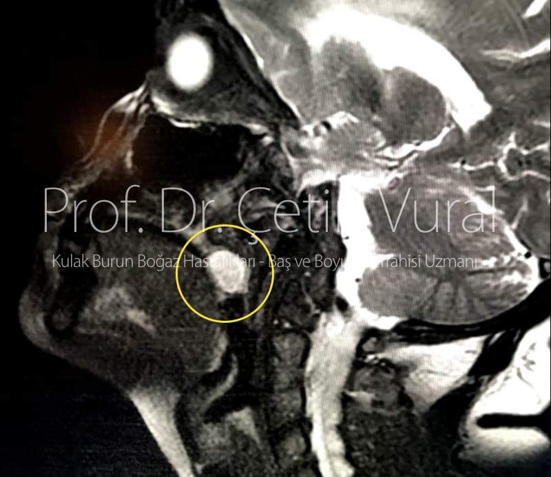 Adenoid Kistik Kanser - Prof. Dr. Çetin Vural
