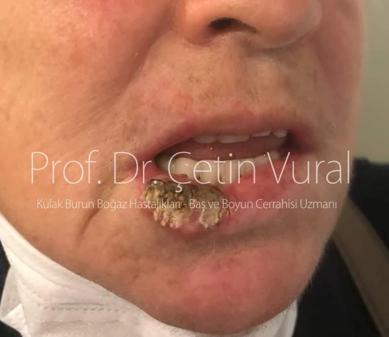 Alt Dudakta Skuamoz Hücreli Karsinom - Prof. Dr. Çetin Vural